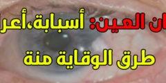 علاج سرطان العين أعراضه، أسبابه، طرق الوقايه منه
