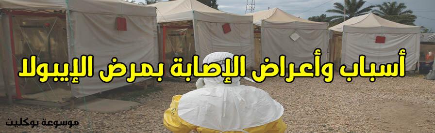 أسباب وأعراض الإصابة بمرض الإيبولا وما هو ما هو الإيبولا؟