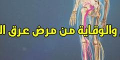 علاج مرض عرق النسا وما أعراضة والوقاية منه