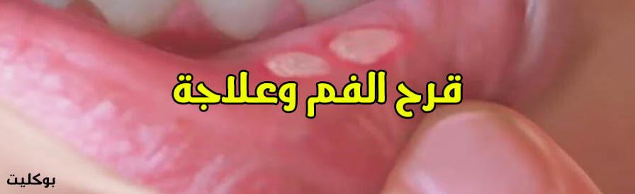 كيفية علاج تقرحات الفم نهائياً