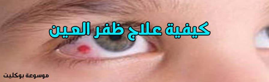 علاج ظفر العين نهائياً والوقاية منها