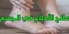 كيفية علاج زيادة الأملاح في الجسم والتخلص منه