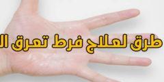 أحدث 5 طرق لعلاج فرط تعرق اليدين والتخلص منه