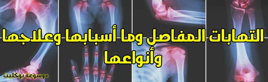التهابات المفاصل وما أسبابها وعلاجها وأنواعها