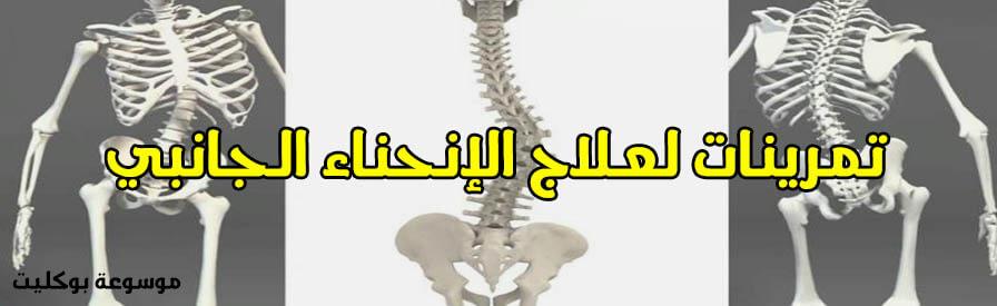 تمرينات لعلاج الانحناء الجانبي للعمود الفقري