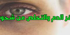 علاج الأنيميا والتخلص من شحوب الوجه في 10 طرق
