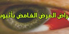 مرض غامض باثيوبيا ما أعراضة وأسبابة وعلاجة