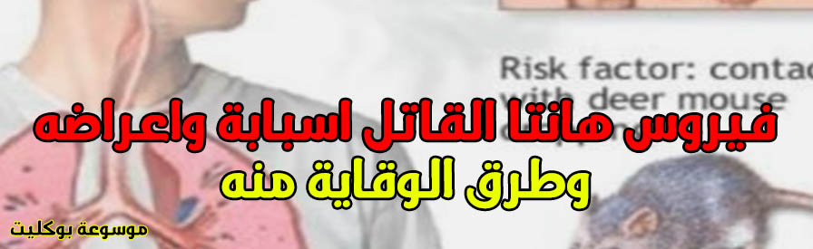 فيروس هانتا القاتل اسبابة واعراضه وطرق الوقاية منه