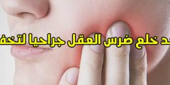 التخلص من ألم خلع ضرس العقل ونصائح بعد خلع