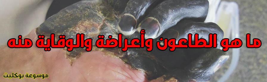 الطاعون الأسود أسبابة وأعراضة وطرق الوقاية منه