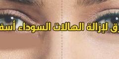 كيفية التخلص من الهالات السوداء تحت العين في 7 أيام