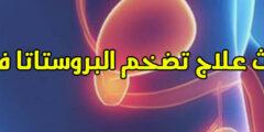 أحدث علاج تضخم البروستاتا فعال وما أعراضه وأسبابه