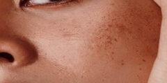 أحدث علاج حفر الوجه السطحيه والعميقة طبي ومنزلي
