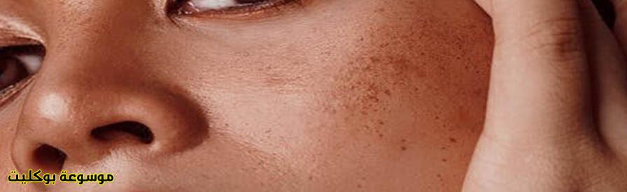 علاج حفر الوجه السطحية
