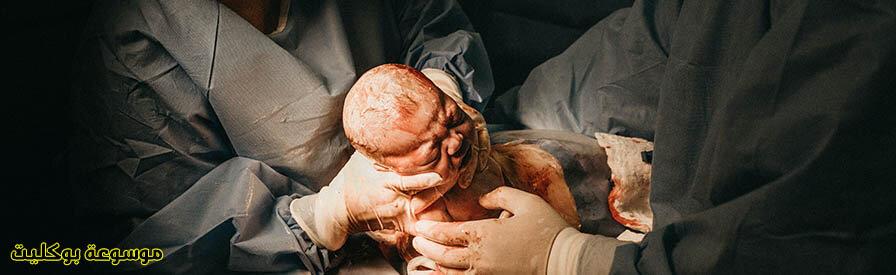 الولاده القيصرية ومراحلها وكيف تحدث بالتفصيل