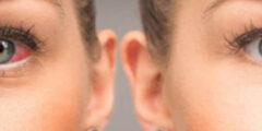 أحدث طُرق علاج إحمرار بياض العين طبي ومنزلي وبالأعشاب