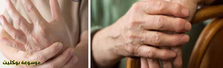 أحدث علاج التهاب المفاصل الروماتيدي نهائيا تخلص من التورم