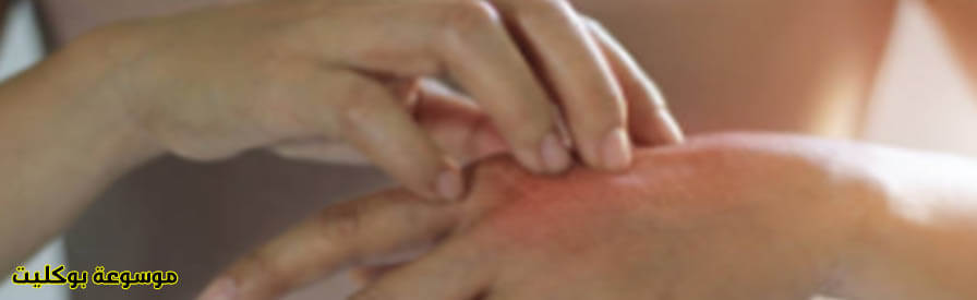 أسباب وعلاج حساسية الجلد نهائياً دوائي ومنزلي