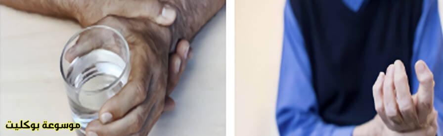 ما هو علاج إرتعاش اليدين