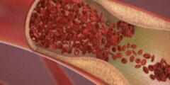 أحدث علاج التصلب المتعدد VX-765 أعراضها، أسبابها