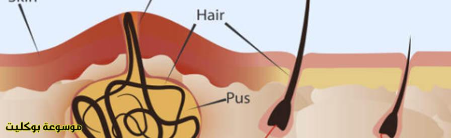 علاج الناسور العصعصي، أسبابة، أعراضه، الوقاية منه
