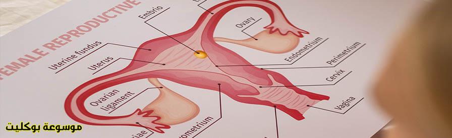 علاج تليف الرحم بالأعشاب والدواء، وما هي أعراضه، أسبابه