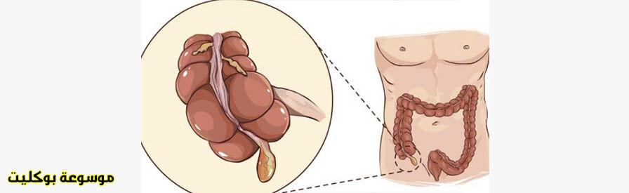 طرق ووسائل علاج التهاب الزائدة الدودية