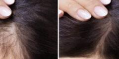 تعرف على احدث علاج تساقط الشعر للرجال والنساء