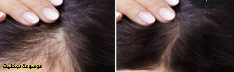 علاج تساقط الشعر للرجال والنساء