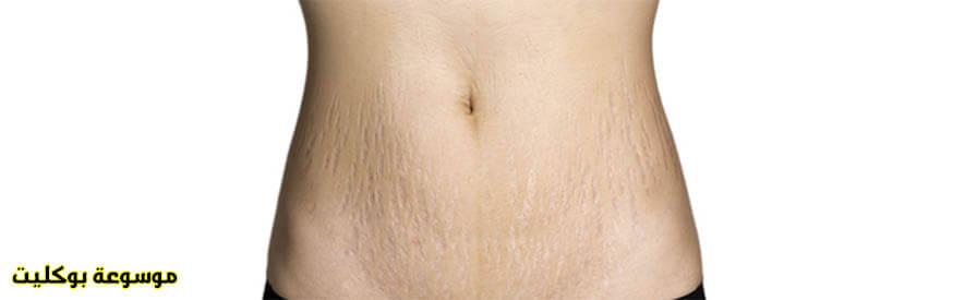 علاج تمدد الجلد والتخلص منه نهائياً