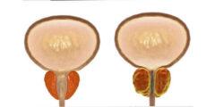 ما هو علاج احتقان البروستاتا نهائياً
