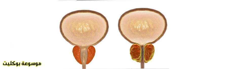 ما هو علاج احتقان البروستاتا نهائياً عند الشباب والكبار
