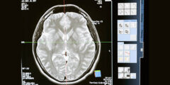 طرق لتحفيز قدرة الدماغ بشكل طبيعي
