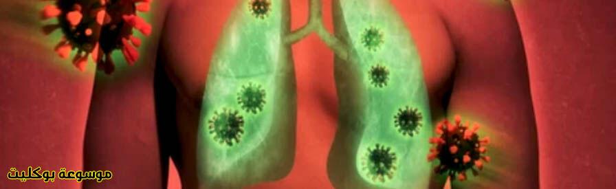علاج الفطر الأسود وعلاقته بالكورونا وطرق الوقايه منه
