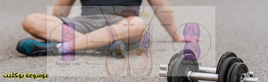 علاج دوالي الخصية بالرياضة