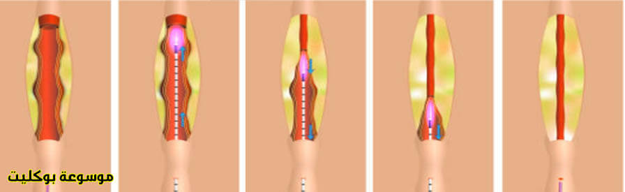علاج دوالي الخصية بالجراحة